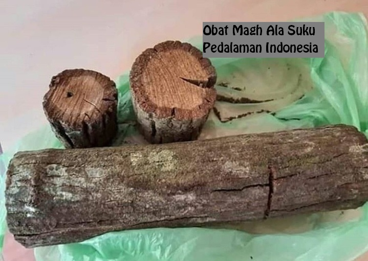 Obat Maag Ala Suku Pedalaman Indonesia